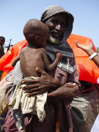 An emaciated child in Mogadishu camp